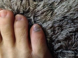 富士登山 足の小指